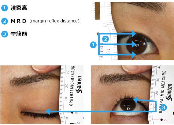 眼瞼下垂手術に必要なデータ