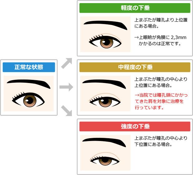 どこから眼瞼下垂?