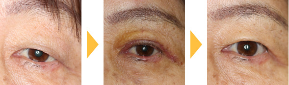 皮膚弛緩の手術例1