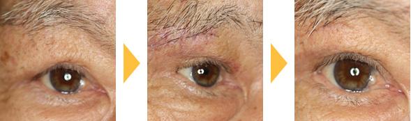 眉毛下皮膚切除の症例:男性