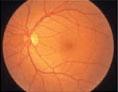 段階1:正常な網膜